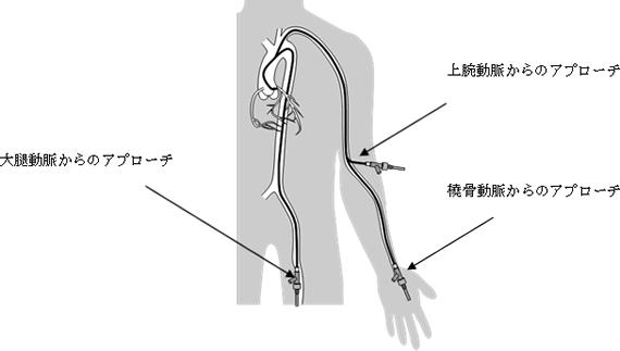 経皮的冠動脈形成術のアプローチ