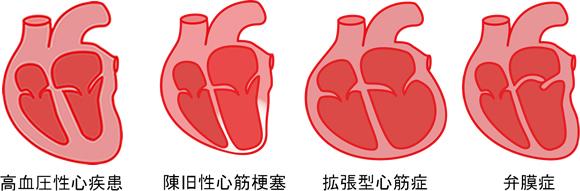 高血圧心疾患 陳旧性心筋梗塞 拡張型心筋症 弁膜症