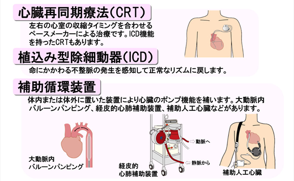 心臓再同期療法(CRT)左右の心室の収縮タイミングを合わせるペースメーカーによる治療です。ICD機能を持ったCRTもあります。 植込み型除細動器(ICD)命にかかわる不整脈の発生を感知して正常なリズムに戻します。 補助循環装置 体内または対外に置いた装置により心臓のポンプ機能を補います。大動脈内
