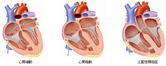 心房細動 心房粗動 上室性頻拍症